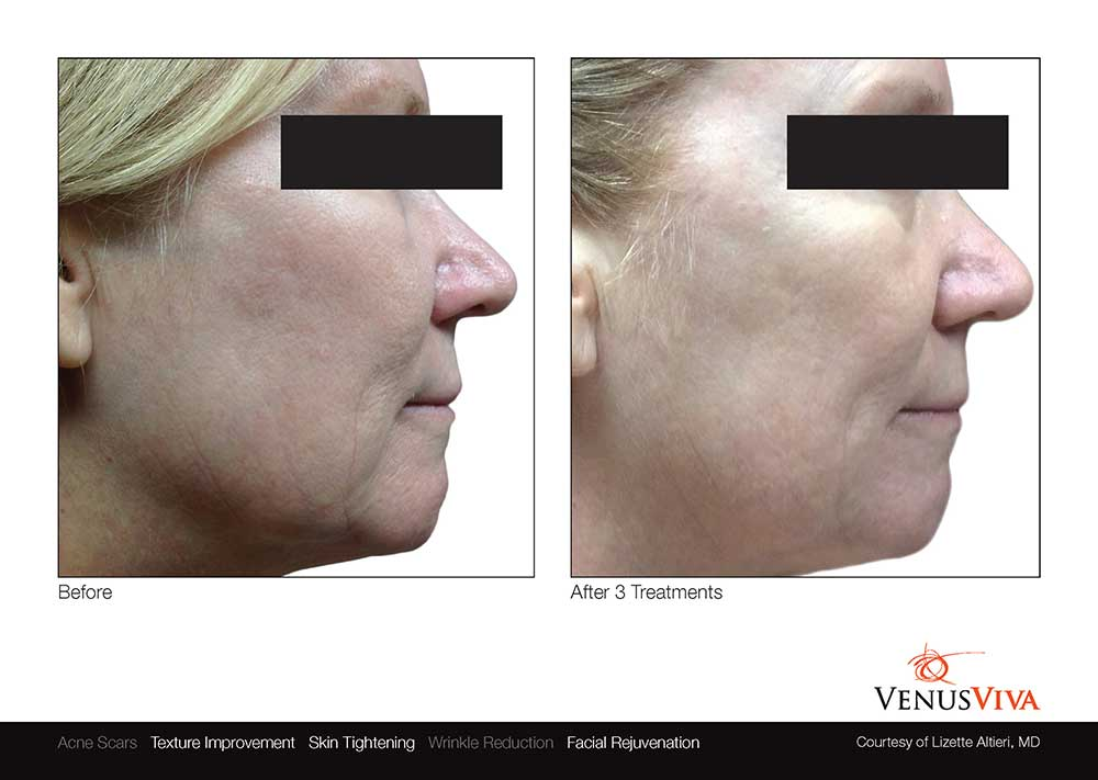 Venus Viva Before After Photo