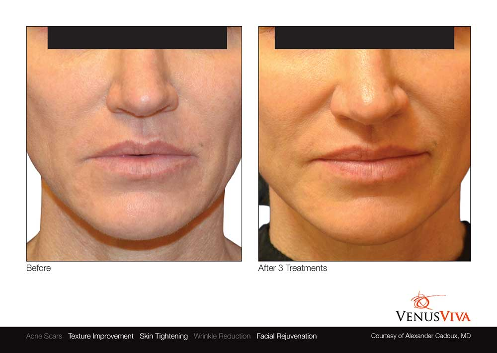 venus-viva-skin-resurfacing-before-after-photos-002