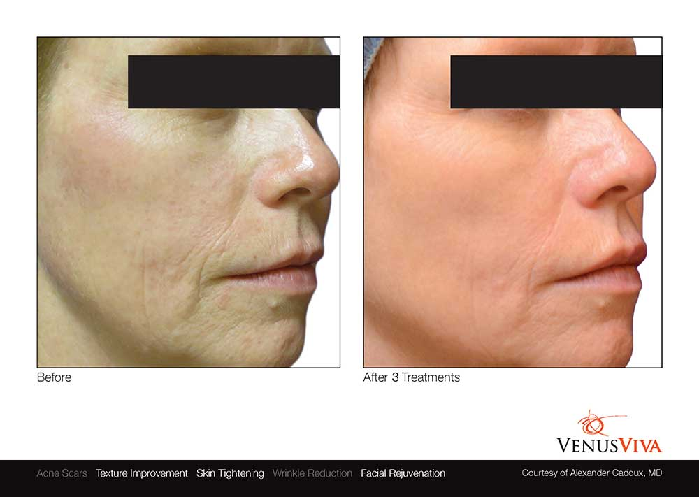 venus-viva-skin-resurfacing-before-after-photos-003