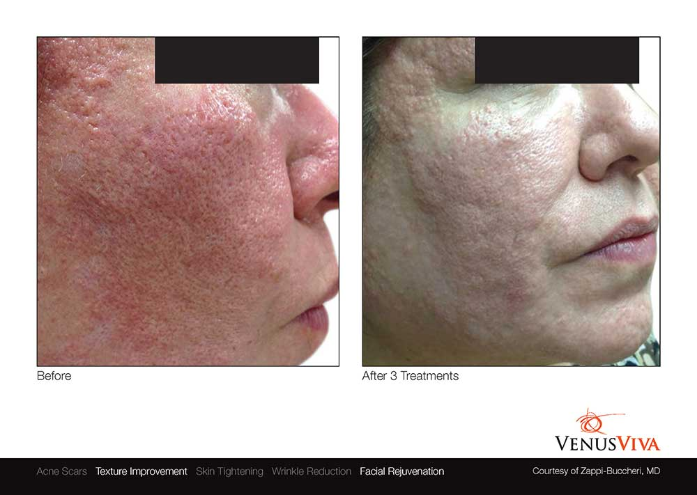 venus-viva-skin-resurfacing-before-after-photos-004
