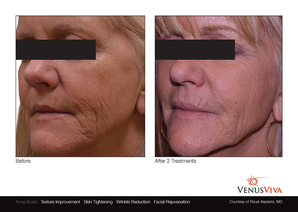 venus-viva-skin-resurfacing-before-after-photos-005