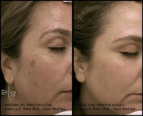 IPL Before and After | Azure Med Spa Frisco, TX