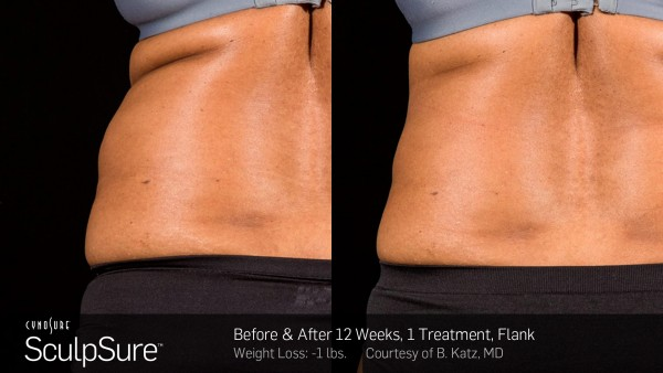 ba-sculpsure-b-katz-post-1tx-12wks-04-600x338