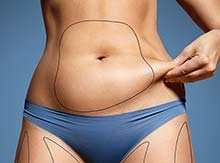 body contour with sculpsure