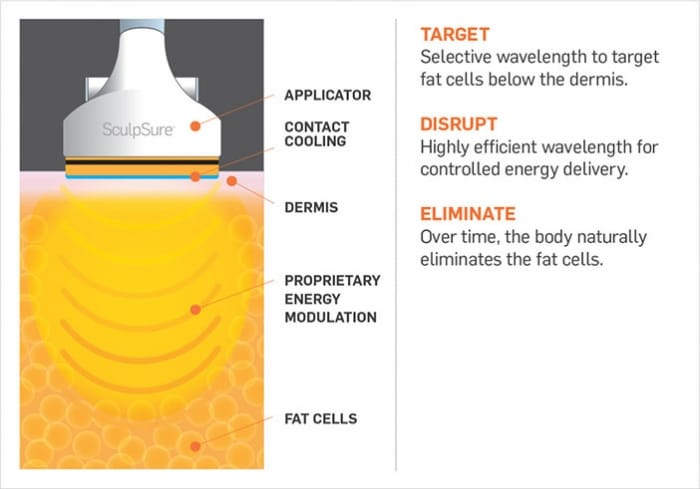 sculpsure-diagram