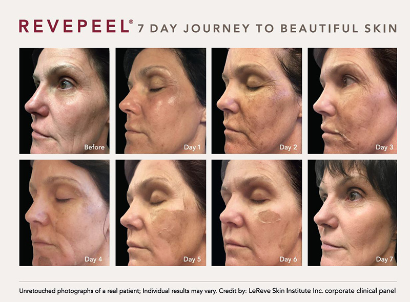 The Revepeel 7-Day Journey
