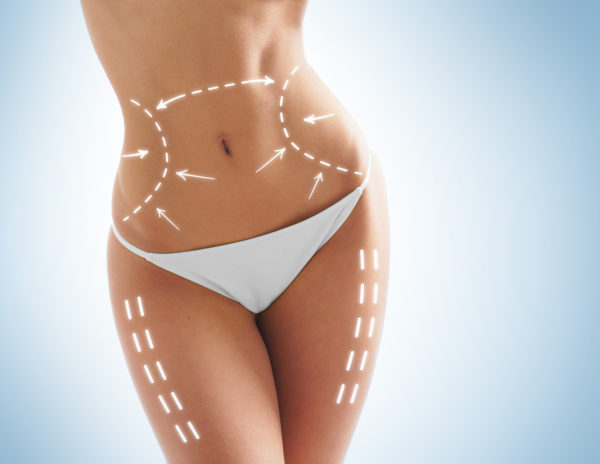 SculpSure is Your Summer Solution